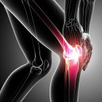 Common Causes of Knee Pain and Natural Ways to Help Heal